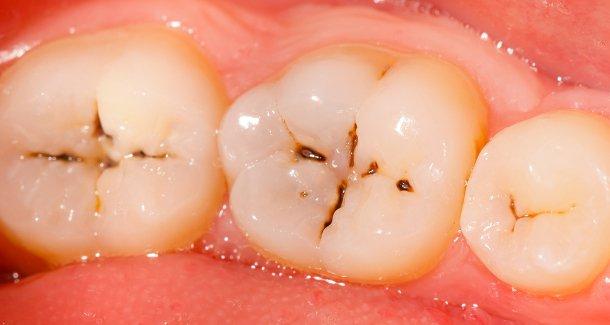 tanden-bederf