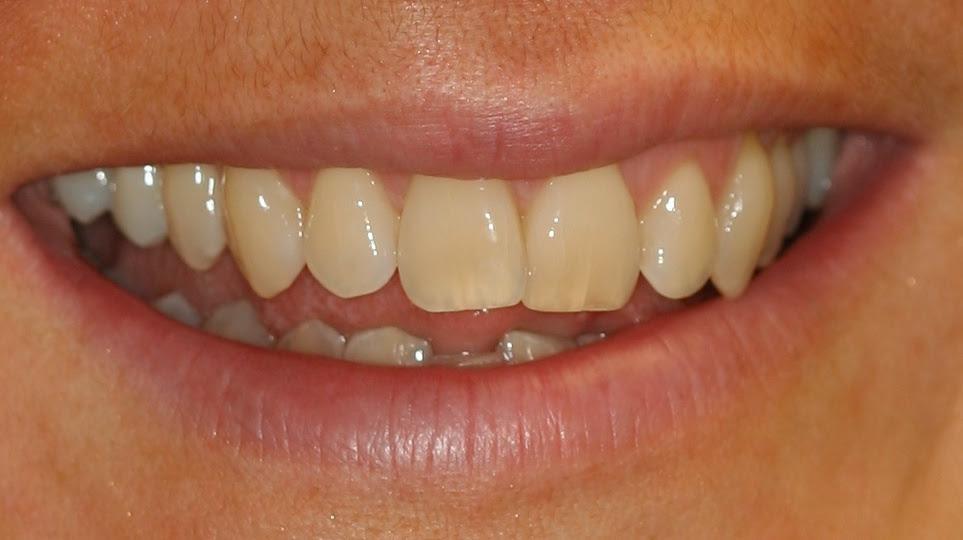 tanden-roken
