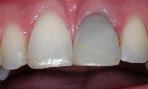 tanden-verkleuring