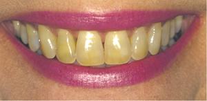 tanden-verkleuring 2